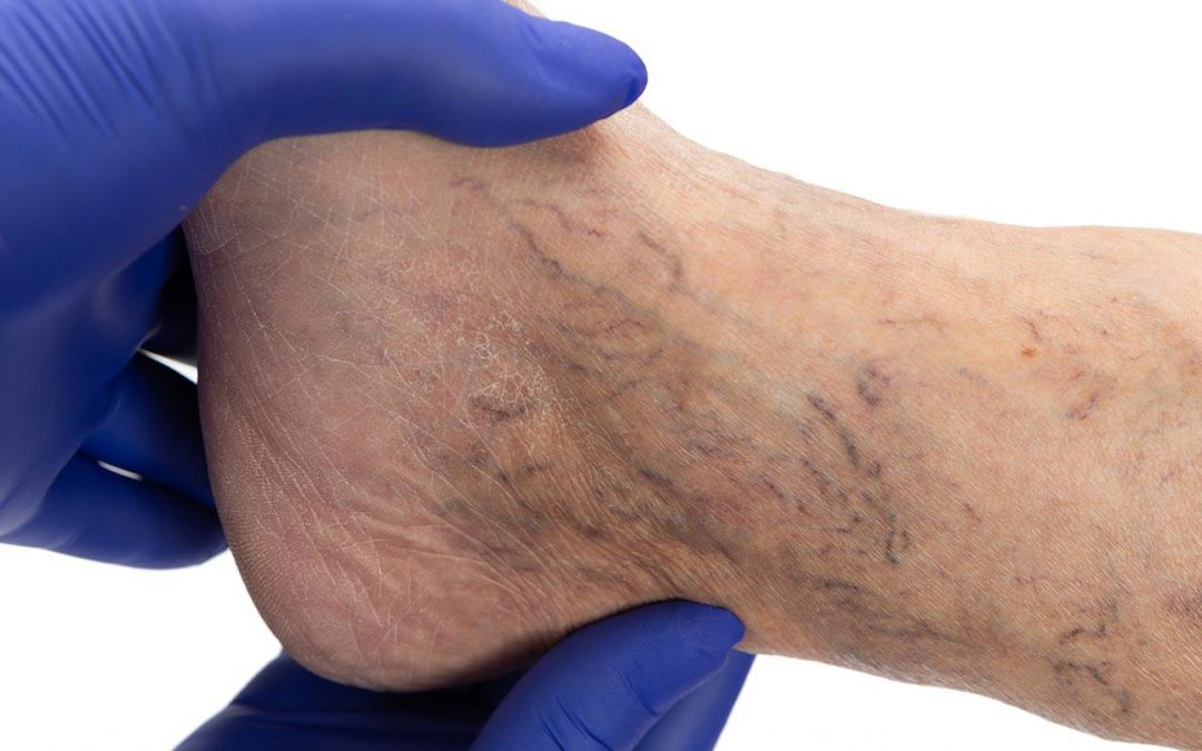 When to seek treatment for your varicose veins