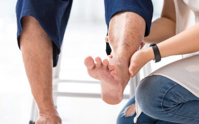 Consequences of ignoring varicose veins